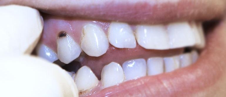 зубной кариес смертельно опасен