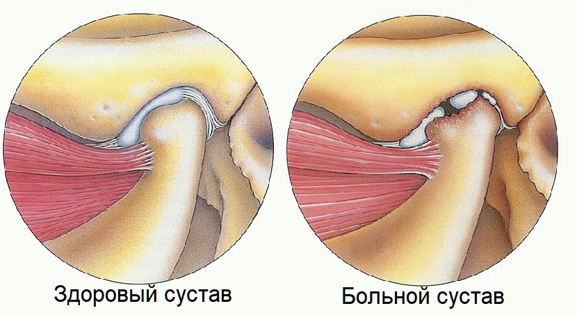 щелканье и хруст челюсти при открытие рта