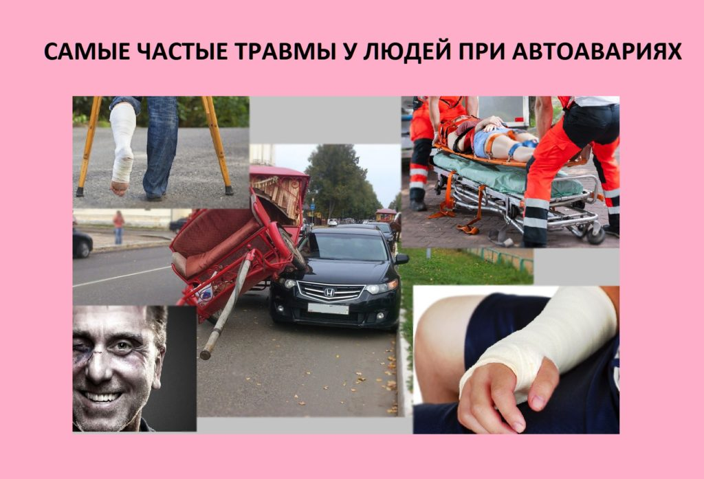 Самые частые травмы у людей при автоавариях