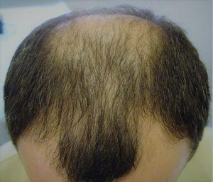 Причины облысения головы у мужчин
