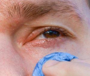 конъюнктивит боль и раздражение глаза глаукома покраснение глаза